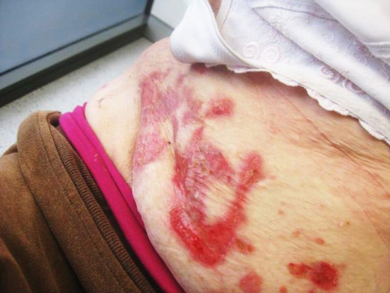 second skin dermatology - bullous pemphigoid
