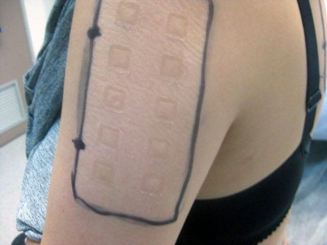 Allergy Patch Test - Second Skin Dermatology
